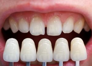 dental_veeners