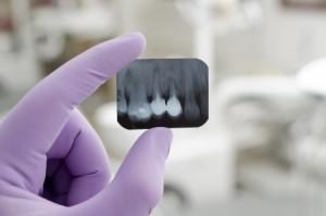 диагностика, удаление зубов, Тель-Авив
